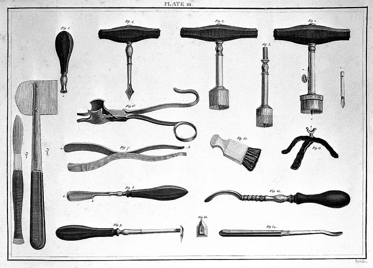 Trepanation: Unusual Medical Procedure of Drilling Hole in